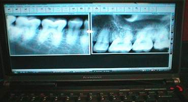Digital Dental X Rays