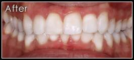 Teeth Straightening and Alignment